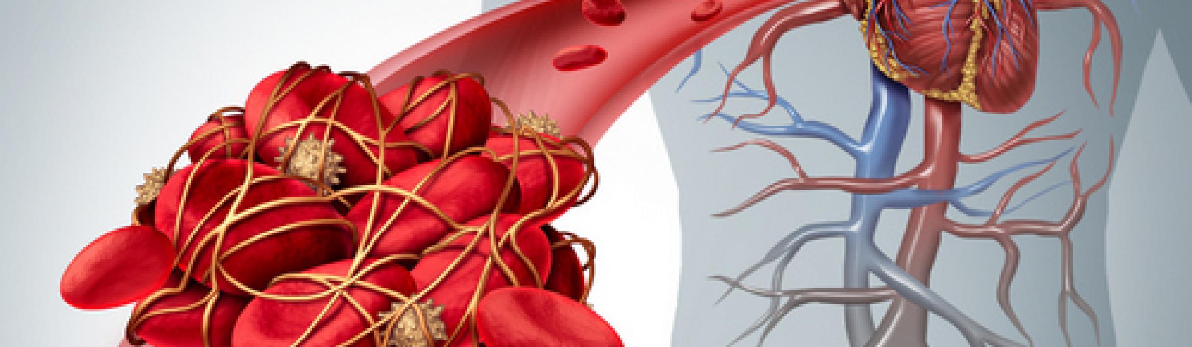 blodprop i lungen kritisk sygdom
